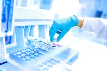 Clinical Research - Test tubes arranged for testing